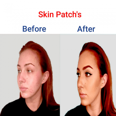 Skin Patchs-min