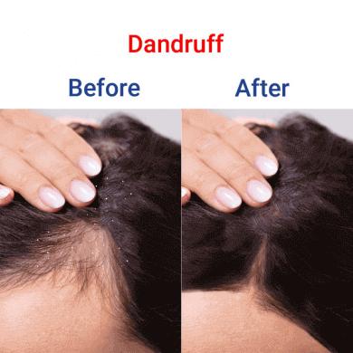 Dandruff-min-390x390-12525252525252525252525252525252520(1)