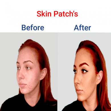 Skin-Patchs-min-390x390-1
