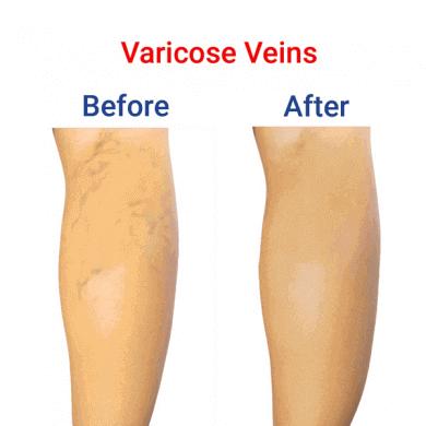 Varicose-Veins-min-390x390-1