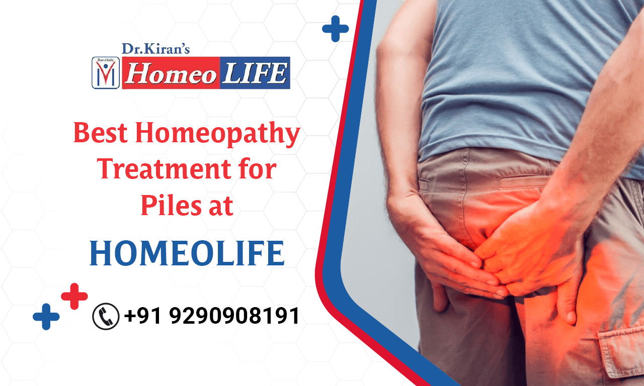 Best Homeopathy Treatment for Piles at Homeo Life