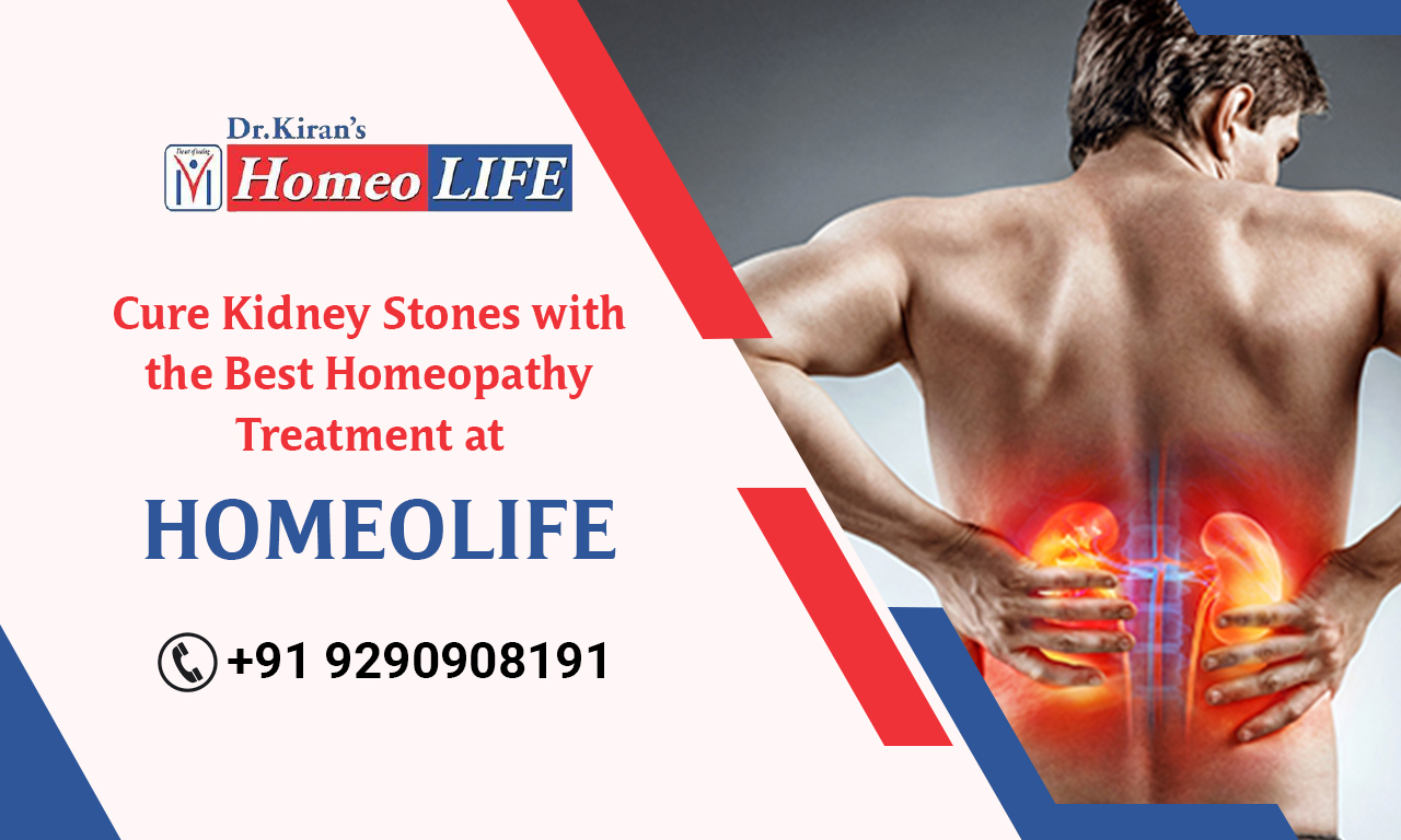Homeopathy Treatment for Kidney Stones